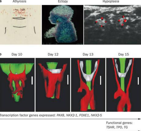 Выявление и лечение врожденного гипотиреоза