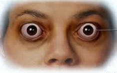 гипотиреоз и выпученые глаза