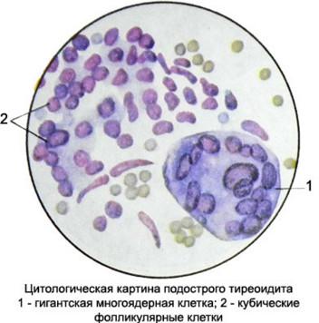 цитологическая картина болезни