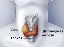 цистаденома щитовидки