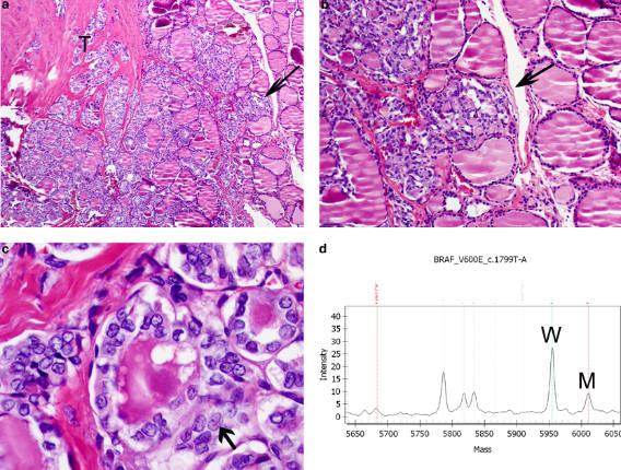 формы фиброза щитовидной железы