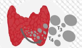 Повышенные гормоны щитовидки
