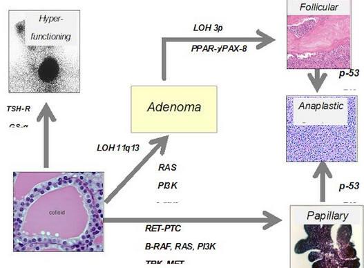 Дифузные изменения переходящие в рак