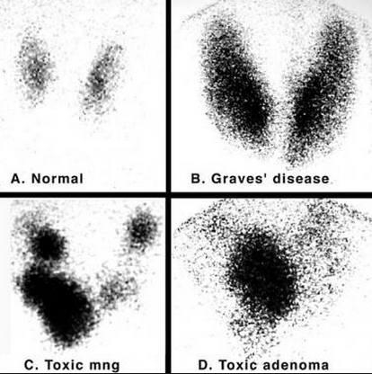 Сканирование щитовидной железы показало зоб