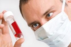 Анализ крови на уровень антител