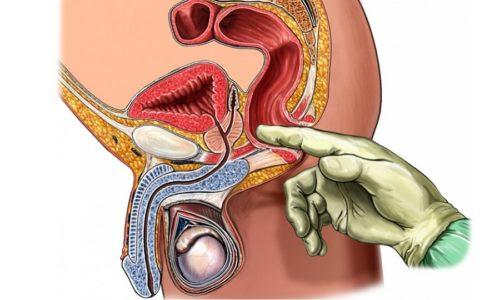 Массаж простаты проводится с лечебной целью при возникновении застойных явлений в органе, гиперплазии тканей и нарушении его функционирования