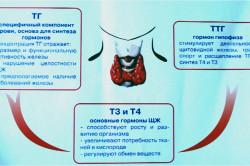 Медуллярный тип рака щитовидной железы