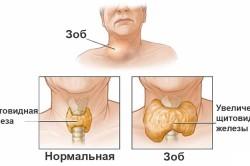 Пример увеличения щитовидки и формирования токсического узлового зоба
