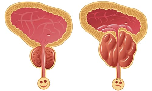 Доброкачественная гиперплазия простаты является распространенным патологическим процессом