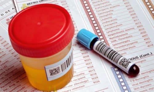 При подозрении на патологии поджелудочной назначают биохимическое исследование крови и мочи, при заболеваниях органа увеличивается концентрация амилазы, липазы, эластазы и трипсина