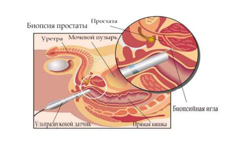 Врач направляет больного на биопсию, когда обнаруживает у него признаки развития злокачественного процесса