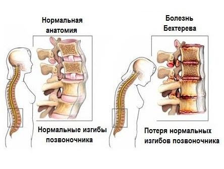 Болезнь Бехтерева поражает суставы