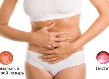 Симптомы и признаки воспаления мочевого пузыря