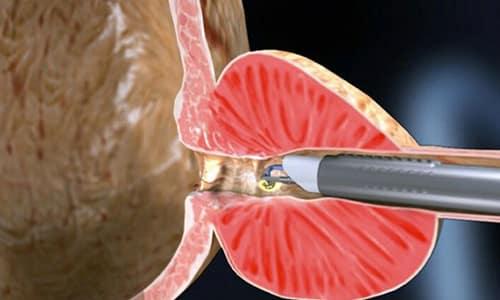 Лазерная вапоризация является щадящим способом и позволяет сохранить репродуктивную функцию