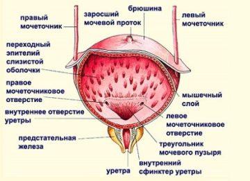 Причины локального и диффузного утолщения стенок мочевого пузыря
