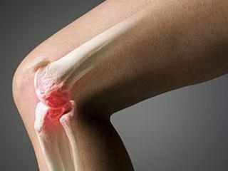 Остеохондроз колена - сравнительно редкое заболевание