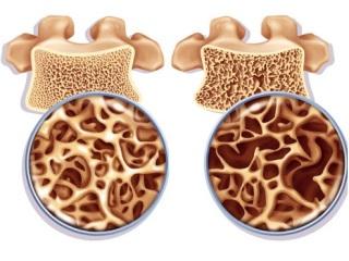 Структура кости в норме и при остеопорозе