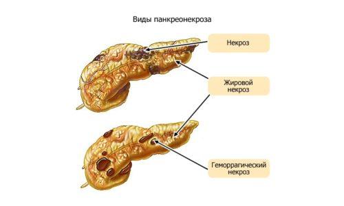 Сильно увеличивается поджелудочная железа при панкреонекрозе - разрушении тканей органа