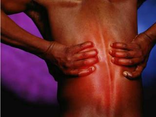 Мышечные и костные патологии как причина радикулита