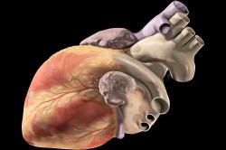 Частые боли в сердце при гипотериозе
