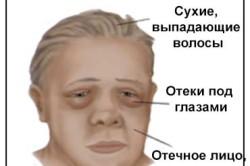 Симптомы при микседеме
