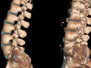 МРТ позволяет точно диагностировать защемление